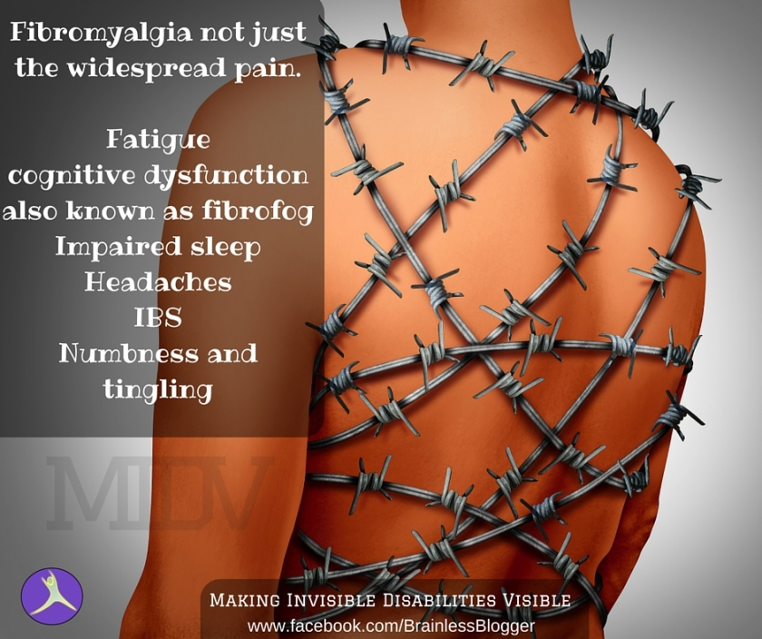 Fibromyalgia not just the widespread pain.Fatiguecognitive dysfunctionalso known as fibrofogImpaired sleepHeadachesIBSNumbness and tingling